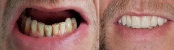 Total implant maxilar Anyridge Zirconiu